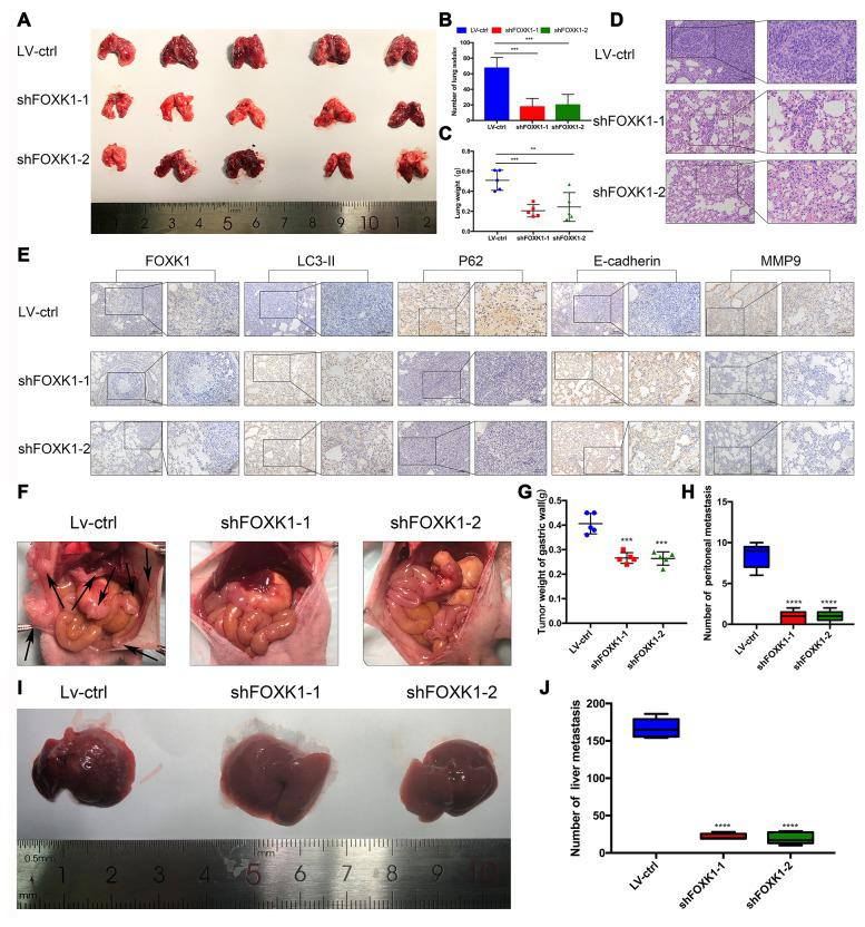 Downregulation of FOXK1 inhibits metastasis in vivo. ( A ) Lung tissues were obtained from nude mice injected with differently treated MGC803 cells (n=5). ( B ) The number of lung nodules per nude mouse was determined. ( C ) The lung weight of each nude mouse was calculated. ( D , E ) Representative images of H E staining of lung sections (scale bar, 100 μm and 50 μm) and IHC staining of FOXK1, LC3-II, P62, E-cadherin and <t>MMP9</t> levels in lung tissue (scale bar, 100 μm and 50 μm). ( F ) MGC803 cells transfected with LV-shFOXK1-1 and LV-shFOXK1-2 were orthotopically transplanted into the stomach walls of nude mice (n=5). ( G , H ) Weight of gastric wall tumors (g) and number of metastatic tumors ( H ) at 28 days post transplantation with MGC803 cells. ( I , J ) Representative images ( I ) and number ( J ) of diffuse liver metastases. * P