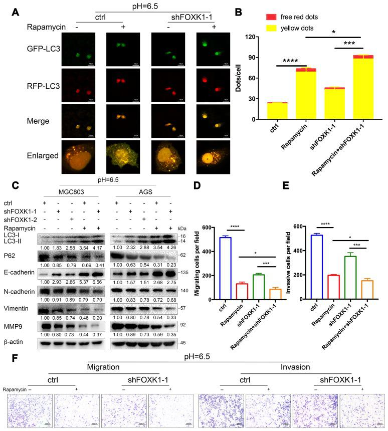 Dual inhibition of mTOR and FOXK1 enhances autophagy and leads to the synergistic transfer of acidic GC cells. ( A – G ) Acidic MGC803 cells were treated with DMSO or rapamycin (100 nM) or infected with ctrl, shFOXK1-1, shFOXK1-2 or a combination of these for 24 h. ( A ) The red-only and yellow puncta of MGC803 cells transfected with mRFP-GFP-LC3 were observed under laser confocal conditions, and the quantitative results are shown in ( B ). Scale bar, 10 μm. ( C ) Western blotting was performed to assess the expression intensity of LC3-I, LC3-II, P62, E-cadherin, N-cadherin, Vimentin and MMP9. ( D – F ) The migration and invasive capabilities of MGC803 cells were examined. The invading cells are quantified in ( D , E ). The data are presented as the means ± S.D.s from three independent experiments. * P