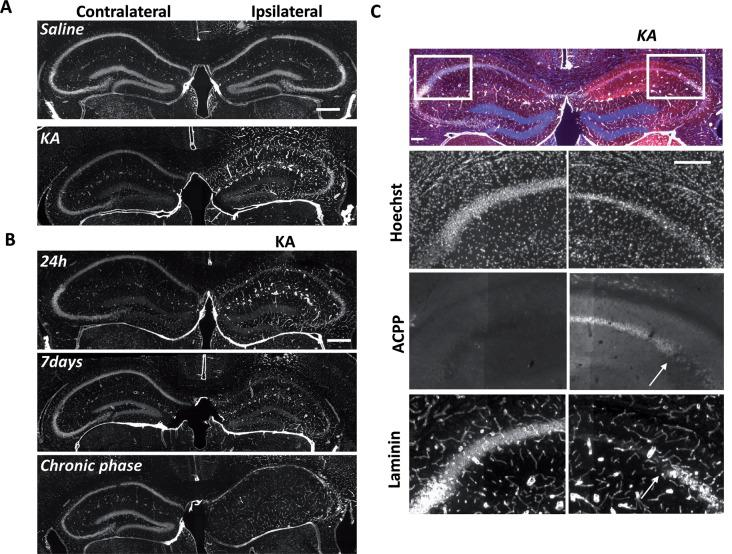 Uptake of ACPP is superimposed to loss of neuronal <t>laminin</t> in KA treated brain. (A) Laminin immunoreactivity in saline or KA-injected hippocampus 24 h after injection. (B) Progressive changes of laminin expression during the different phases of epileptogenesis. (C) Magnification of laminin loss in CA1–CA2 region 7 days after KA injection. The white arrow shows the limit between ACPP uptake and intact laminin (right panels), whereas no TAMRA fluorescence is detectable in the contralateral side and laminin is intact. TAMRA ACPPs (red), Laminin (white), Hoechst (blue). Scale bars: (A , B) 500 μm, (C) 200 μm.