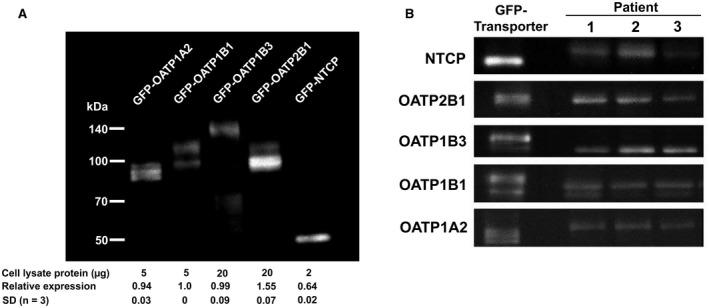 Determination of transporter protein expression in human liver lysates. (A) GFP‐fusion proteins of each of the five transporters that were studied were prepared in HEK293FT cells, as described in Materials and Methods. SDS‐PAGE of aliquots of each of the HEK293FT lysates was performed, transferred to PVDF membrane, and subjected to western blot using GFP antibody. In this representative experiment of three that were performed, the amount (µg) of cell lysate protein applied to the gel was adjusted to provide similar intensities for each of the GFP‐transporter fusion proteins, as indicated. Relative expression of GFP‐OATPs was obtained by densitometry, and the means ± SD of the three experiments are indicated in the figure. (B) In these representative western blots, lysates of liver samples from 3 patients as well as appropriate calibrated HEK293FT lysates containing approximately equal amounts of GFP‐transporter fusion proteins were subjected to SDS‐PAGE followed by western blots, using specific transporter antibodies as indicated.