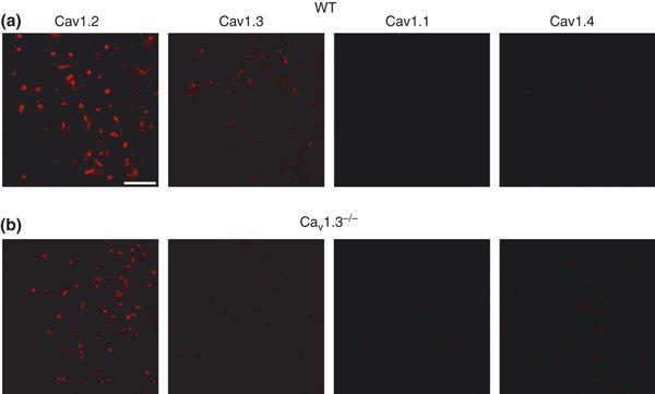 Cav1 channel subtypes expressed in mouse chromaffin cells. Immunocytochemical characterization of Cav1 channel subtypes. (a–b) Confocal images of isolated mouse chromaffin cells from WT (a) or Cav1.3 −/− mice (b) labeled with antibodies against Cav1.1, Cav1.2, Cav1.3 and Cav1.4 channels (dilution 1 : 200) and the corresponding secondary antibody (dilution 1 : 200) Alexa Fluor excited at a wavelength of 594 nm (dilution 1 : 200). Experiments were performed on four paired cultures of WT and Cav1.3 −/− cells. Calibration bar: 75 microns.