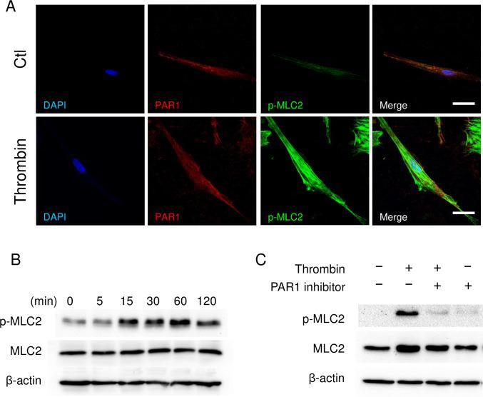 Thrombin activates acto-myosin interaction by phosphorylation of myosin light <t>chain-2</t> (MLC2). (A) Immunocytochemistry of PAR1 (red) and phosphorylated MLC2 (Ser19, green) in human myometrial cells. (B, C) Immunoblots of phosphorylated MLC2 (p-MLC2), total MLC2, and β-actin of myometrial cells. Myometrial cells were treated with thrombin (2 U/mL) as a function of time (B) , or pretreated with 100 nM PAR1 inhibitor (SCH79797) for 1 h, and then treated with 2 U/mL of thrombin for 30 min (C) . The experiments were repeated three times.