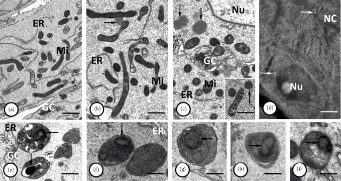 (a–c) Accumulations of mitochondria ( Mi ) together with the tubules of the endoplasmic reticulum ( ER ) that enclosed the Golgi complexes ( GC ) are visible in the nurse cell pole opposite the ring canal, near the cell nucleus ( Nu ). Note the two distinguishable kinds of mitochondria with electron-dense and electron-lucent matrix, both of them possessing numerous cristae. Granulo-fibrillar nuage material ( arrows ) was observed close to mitochondrial aggregation within both nurse cells and cytophore (inset). (d) Thioflavin T staining showed that the nuage material was rich in amyloid-like proteins ( arrows ). NC – nurse cells; Nu – nurse cell nucleus. (e–i) Autophagosomes in nurse cells containing the remnants of cell organelles including the mitochondria ( arrows ). Tubules of endoplasmic reticulum – ER ; Golgi complexes – GC . (a–c), (e–i) Transmission electron microscopy, Epon ultrathin sections; (a) bar = 1.4 µ m; (b), (c), (e) bar = 0.9 µ m; (f) bar = 0.5 µ m; (g, h) bar = 0.4 µ m; (i) bar = 0.3 µ m. (d) Steedman wax sections stained with thioflavin-T; bar = 45 µ m.