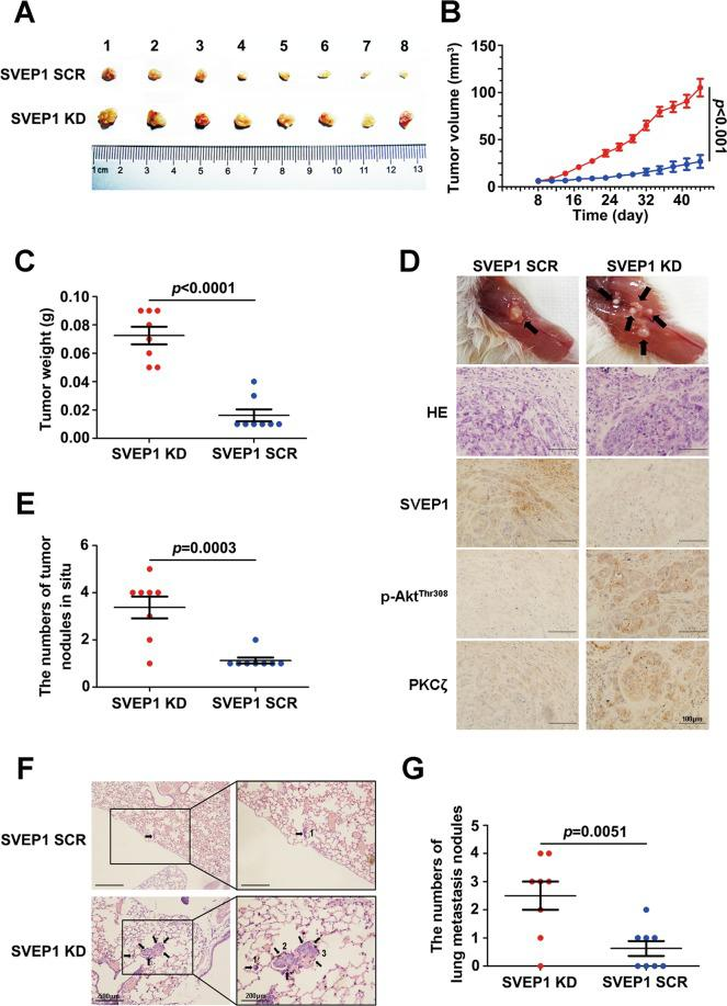 Decreased SVEP1 expression promotes HCC cell proliferation and metastasis in vivo. a Images of tumors from NOD-SCID nude mice in the SCR and SVEP1/KD groups. b , c The tumor volume and weight of the two groups. d HE and representative IHC staining of SVEP1, Akt Thr308 and PKCζ in tumor sections derived from SCR and SVEP1/KD HCC cell-derived models (the images shown are representative). e Statistical analyses of the bone invasion and multiple in situ metastases of the two groups. f, g Representative images and statistical analysis of the lung metastatic nodules in the two groups.