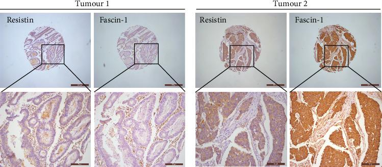 A tendency of positive protein levels between resistin and fascin-1 in colorectal cancer: human colorectal cancer tissue microarrays were immune-stained with anti-resistin and anti-fascin-1 antibodies. Representative staining pictures of tumors are shown.