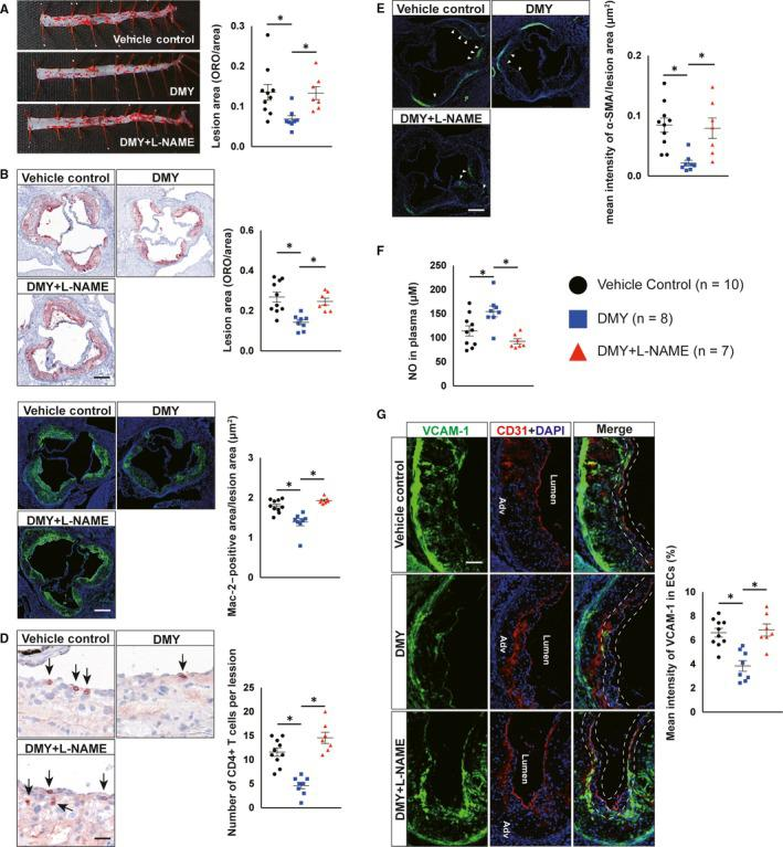 Inhibition of nitric oxide (NO) production by L‐NAME abrogates the inhibitory effects of dihydromyricetin (DMY) on atherosclerosis in Apoe − / − mice. A, Lesion areas were quantified by Oil Red O (ORO)‐stained thoracoabdominal aorta. B, Lesion areas were quantified by ORO‐stained aortic sinus sections. Scale: 200 μm. C, D, Representative images and quantification show Mac‐2–positive macrophages (C) and CD4‐positive T cells (D) in the aortic sinus lesions. Scale: 200 μm (C) and 100 μm (D). Arrows indicate CD4‐positve T cells in aortic sinus lesions. E, Representative images and quantification show α‐smooth muscle actin (α‐SMA)‐positive smooth muscle cells (SMCs) accumulation in the aortic sinus lesions. Arrows indicate differential SMCs accumulation in aortic sinus lesions. Scale: 200 μm. F, ELISA analysis of NO levels in plasma from vehicle, DMY or DMY combined with L‐NAME–treated Apoe − / − mice. G, Representative images and quantification show VCAM‐1 expression in endothelial cells in the aortic sinus lesions. Frozen sections of aortic sinus were stained for anti‐VCAM‐1 (green), anti‐CD31 (red) and 4′,6‐diamidino‐2‐phenylindole (DAPI; blue). The dashed line area indicates differential VCAM‐1 expression in endothelial cells. Scale: 100 μm. Data shown are mean ± SEM (n = 7‐10 mice per group). * P
