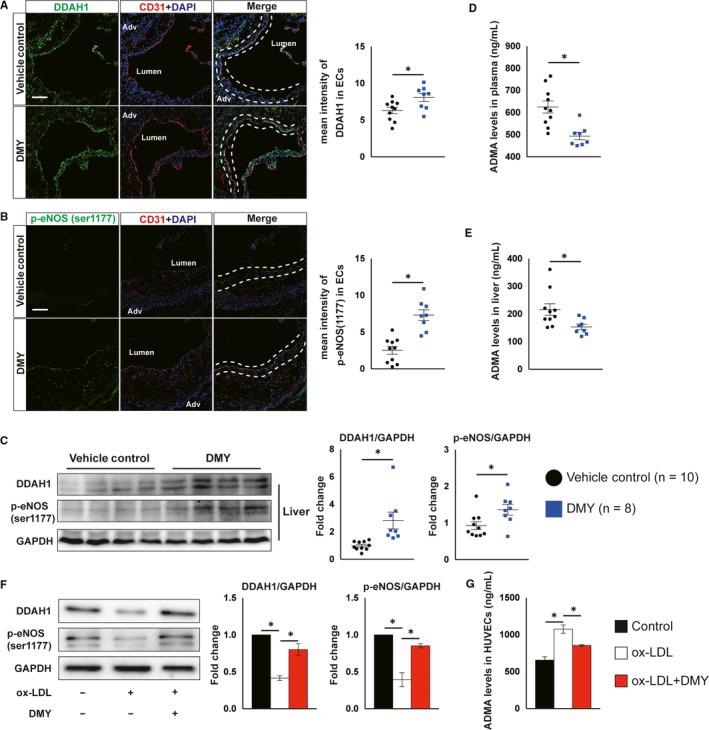 Dihydromyricetin (DMY) administration increases DDAH1/endothelial nitric oxide synthase (eNOS) activation in vivo and in vitro. A, B, Representative images and quantification show DDAH1 (A) and phosphor‐eNOS (ser1177) (B) expression in endothelial cells in the aortic sinus lesions rom vehicle control, DMY‐treated Apoe − / − mice fed with HFD for 12 wk. Frozen sections of aortic sinus were stained for anti‐DDAH1 or phosphor‐eNOS (green), anti‐CD31 (red) and 4′,6‐diamidino‐2‐phenylindole (DAPI; blue). The dashed line area indicates differential DDAH1 or phosphor‐eNOS expression in endothelial cells. Scale: 50 μm. n = 8‐10 mice per group. C, Western blot analysis of DDAH1 and p‐eNOS (ser1177) expression in liver. n = 8‐10 mice per group. D, E, ELISA analysis of ADMA levels in plasma (D) and livers (E) from vehicle control, DMY‐treated Apoe − / − mice fed with HFD for 12 wk. n = 8‐10 mice per group. HUVECs were treated with ox‐LDL (120 μg/mL) or ox‐LDL plus DMY (25 μmol/L) for 16 hours and harvested for indicated experiments. F, Western blot analysis of DDAH1 and p‐eNOS (ser1177) expression. n = 3 independent experiments. G, ELISA analysis of ADMA levels in cell lysates. n = 3 independent experiments. Data shown are mean ± SEM. * P