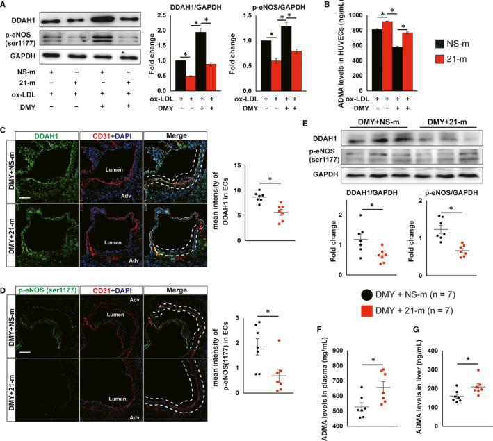 Overexpression of miR‐21 abrogates dihydromyricetin (DMY)‐increased DDAH1 expression and endothelial nitric oxide (NO) synthase phosphorylation and reduced ADMA levels. HUVECs were transfected with 100 n m agomir NC or miR‐21 agomir for 24 h and then treated with ox‐LDL (120 μg/mL) or ox‐LDL plus DMY (25 μmol/L) for 16 h and harvested for indicated experiments. A Western blot analysis of DDAH1 and p‐endothelial NO synthase (eNOS; ser1177) expression. n = 3 independent experiments. B, ELISA analysis of ADMA levels in cell lysates. n = 3 independent experiment. C, D, Representative images and quantification show DDAH1 (C) and phosphor‐eNOS (ser1177) (D) expression in endothelial cells in the aortic sinus lesions from DMY combined with NS‐m injection or DMY combined with 21‐m injection‐treated Apoe − / − mice fed with HFD for 12 wk. Frozen sections of aortic sinus were stained for anti‐DDAH1 or p‐eNOS (green), <t>anti‐CD31</t> (red) and DAPI (blue). The dashed line area indicates differential DDAH1 or phosphor‐eNOS expression in endothelial cells. Scale: 50 μm. n = 7 mice per group. E, Western blot analysis of DDAH1 and p‐eNOS (ser1177) expression in liver. n = 7 mice per group. F and G, ELISA analysis of ADMA levels in plasma (F) and livers (G) from DMY combined with NS‐m injection or DMY combined with 21‐m injection‐treated Apoe − / − mice fed with HFD for 12 wk. n = 7 mice per group. Data shown are mean ± SEM. * P