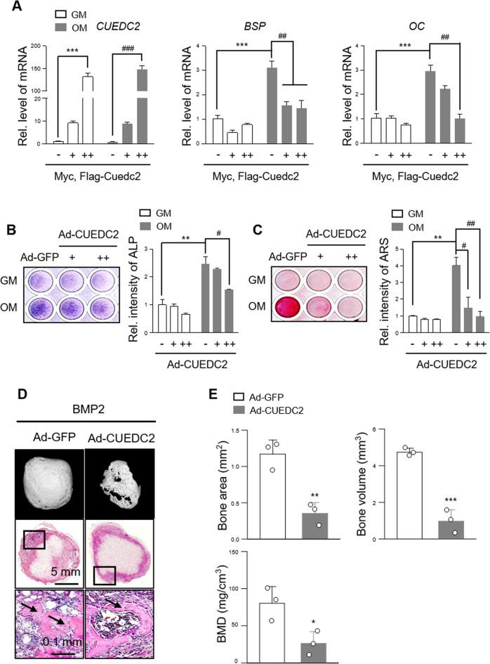 Overexpression of CUEDC2 inhibits osteogenesis in vitro and in vivo. a MC3T3-E1 cells were transfected with Myc-Flag tagged CUEDC2 (+, 500 ng; ++, 1000 ng) or an empty vector and cultured for 4 days in GM (growth medium) or OM (osteogenic medium). Real-time PCR was performed with CUEDC2-, BSP-, and OC-specific primers. *** P