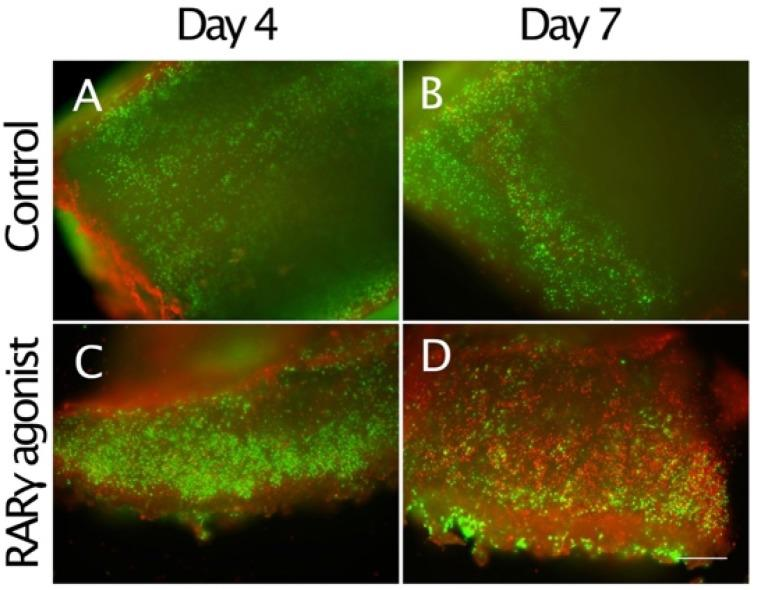 Stimulation of cell death by RARγ agonists in osteochondroma explant cultures. The osteochondroma explants were treated with vehicle (0.1% ethanol) ( A and B ) or 300 nM NRX204647 ( C and D ) in DMEM containing 2% charcoal-treated FBS ( n = 2, 3 patients). The explants were subjected to Live/death assay 4 or 7 days after treatment. Note that a much larger number of cells incorporated red-fluorescent ethidium homodimer-1 in the RARγ agonist-treated culture on day 7. Bars are 600 μm for ( A – D ).