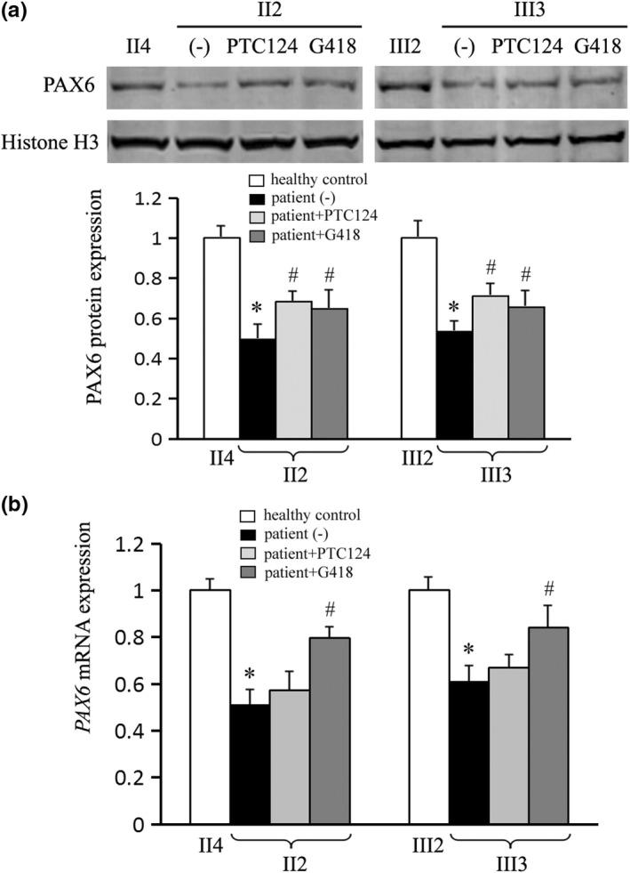 """Recovered expression of PAX6 by nonsense suppression therapy. Patients II2 and III3 were compared with the age‐matched II4 and III2 healthy controls, respectively (taken as """"1""""). (a) Both ataluren (PTC124) and geneticin (G418) restored the PAX6 protein to about 65%–70% of a healthy level by Western blot. Histone H3 was used as an internal control. (b) The PAX6 mRNA expression was restored to about 80% of the healthy level in G418 but not PTC124 treatment by real‐time PCR analysis. The β‐actin mRNA was used as an internal control. * p"""
