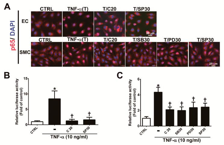 Corylin reduces the activation of NF-κB p65 in TNF-α-treated HUVECs and VSMCs. ( A ) HUVECs were pretreated (1 h) with 20 µM corylin (C20) or 30 nM SP600125 (SP30) and then incubated with 10 ng/mL TNF-α (T) for 15 min. VSMCs were pretreated (1 h) with 20 µM corylin, 30 µM SB203580 (SB30), 30 µM PD98059 (PD30), or 30 nM SP600125 (SP30) and then incubated with 10 ng/mL TNF-α (T) for 15 min. Immunofluorescence staining was performed to examine the nuclear localization and expression level of phosphorylated NF-κB p65 (P-p65). Nuclei were labeled with DAPI (blue). Scale bar = 25 μm. ( B , C ) HUVECs and VSMCs were transfected with NF-κB p65 luciferase reporter constructs, pretreated (1 h) with 20 µM corylin (C20), 30 µM SB203580 (SB30), 30 µM PD98059 (PD30), or 30 nM SP600125 (SP30) and then incubated with 10 ng/mL TNF-α for 6 h. Total cell lysates were collected, and luciferase activity was detected. The data are shown as the mean ± SD. * p