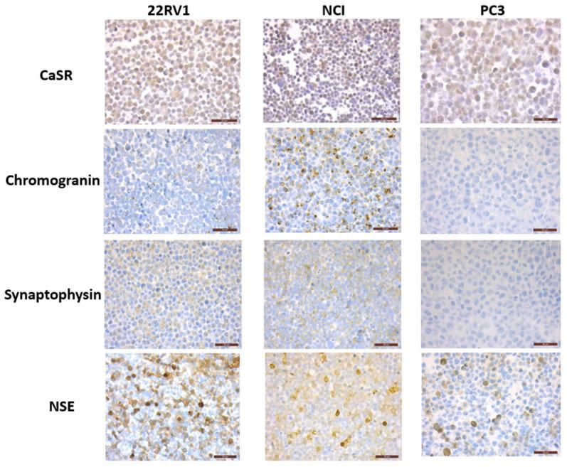 Expression of CaSR and neuroendocrine markers in NCI-H660, PC3 and 22RV1 cell lines. Immunohistochemical staining on cell pellets: all markers are expressed in NCI-H660 and 22RV1 cell lines, with nevertheless a weak expression of chromogranin in 22RV1. In PC3 cells, while both CaSR and NSE are expressed, no staining was observed for chromogranin and synaptophysin.