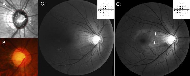 Representative case of initial bi-hemispheric visual field defects in severe shift group. This patient (40 year-old, female) has been followed up for 6 years. Highest intraocular pressure on her right eye was 23 mmHg. ( A ) Magnified view of peripapillary area of infrared funduscopic image. The red dots indicate the Bruch's membrane opening (BMO), which was delineated using cross-sectional B-scan spectral-domain optical coherence tomography (SD-OCT) images. ( B ) Disc photography. The emergence of the vascular trunk is not evident. ( C ) Red-free fundus photos and pattern deviation plots of Humphrey visual field tests at initial ( C 1 ) and final ( C 2 ) visits. The bi-hemispheric visual field defects and bi-hemispheric retinal nerve fiber layer (RNFL) defects were observed at the initial visit ( C 1 ). At the final visit, the RNFL defects had increased toward macula (arrows). The visual field defect had also progressed in both hemispheres ( C 2 ).