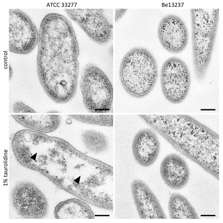 Transmission electron micrographs (TEM) images of Porphyromonas gingivalis ATCC 33277 and Tannerella forsythia Be13237 after treatment with 1% taurolidine for 2 h, in comparison to its control. P. gingivalis shows a decomposition of the cytoplasm leading to unstained areas (arrowheads). For T. forsythia , no difference could be found. Scale bars: 200 nm.