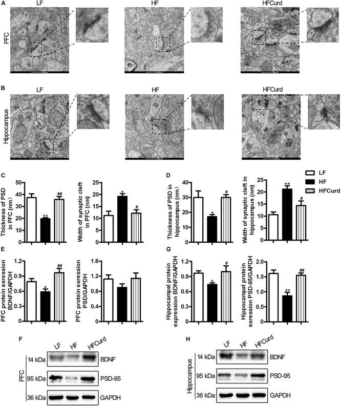Effects of chronic curdlan supplementation on synaptic morphology and synaptic proteins in the PFC and hippocampus of mice fed a HF diet. (A,B) Electron micrograph of synaptic ultrastructure in the PFC (A) and hippocampus CA1 region (B) ; (C,D) image analysis of thickness of postsynaptic densities (PSD), width of synaptic cleft and curvature of synaptic interface in the PFC (C) , and hippocampus (D) ; (E–G) protein expression levels of brain derived neurotrophic factor (BDNF) and PSD-95 in the PFC (E,F) and hippocampus (G,H) . Values are mean ± standard error of means. n = 5. * p