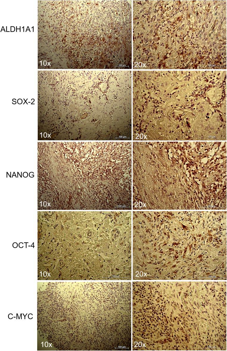 Immunohistochemistry of lung myofibroblastic tumor. Representative immunohistochemical staining of ALDH1A1, SOX2, NANOG, OCT-4, and c-MYC stem cell markers on a myofibroblastic tumor. Images were shown at 10x and 20x magnification.