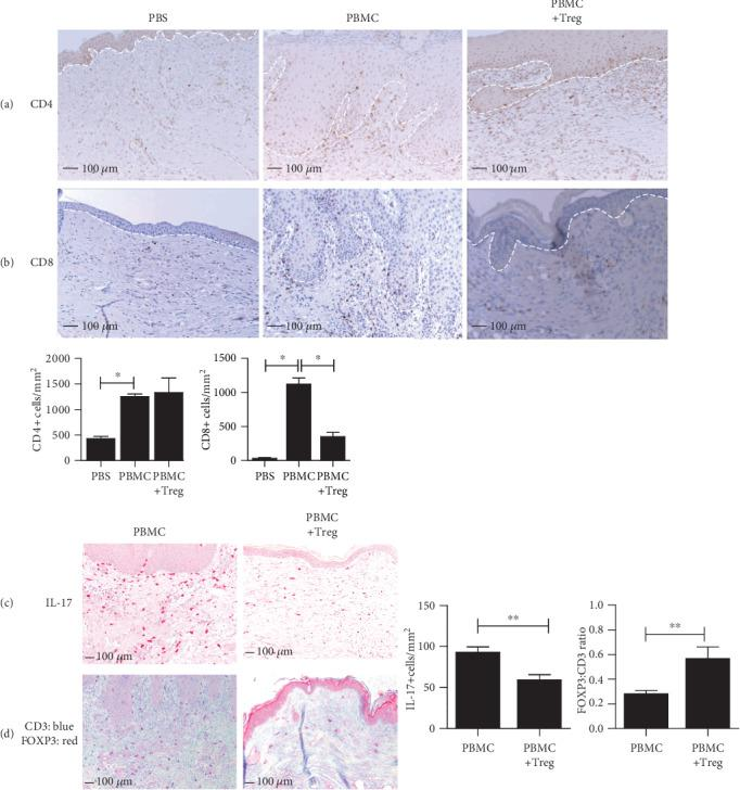 Treg infusion inhibits skin-infiltrating T cells and downregulates local IL-17 production while promoting FOXP3+ Treg enrichment. Representative histology at 10x magnification and quantitative analysis in skin grafts from SCID beige mice at 28 days after cell injection. Expression of human (a) CD4+ and (b) CD8+ T cells. (c) Expression of IL-17-secreting cells and (d) expression of CD3+ (blue) and FOXP3 (red). Mean ± SEM is shown for (a–c) ( n = 3). Statistical significance was analysed by the Mann–Whitney U test. ∗ p value