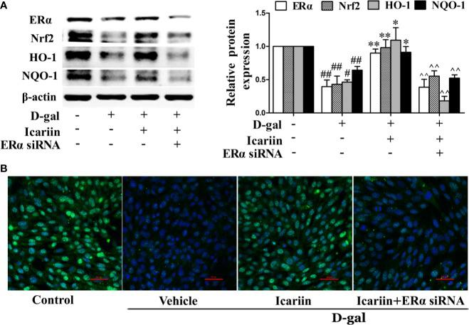Icariin protects against TM4 cells injury via the ER α /Nrf2 signaling pathway. TM4 cells at 1 × 10 6 /well in 6-well plates transferred with or without ER α siRNA were incubated with icariin (1 μM) or DMSO (0.1%) for 12 h, followed by treatment with 100 mM D-gal for 60 h. (A) The relative protein expression levels of ERα, Nrf2, HO-1, and NQO-1 in TM4 cells as described above were measured by western blotting analysis. All values are expressed as means ± SEM of three independent experiments. # P