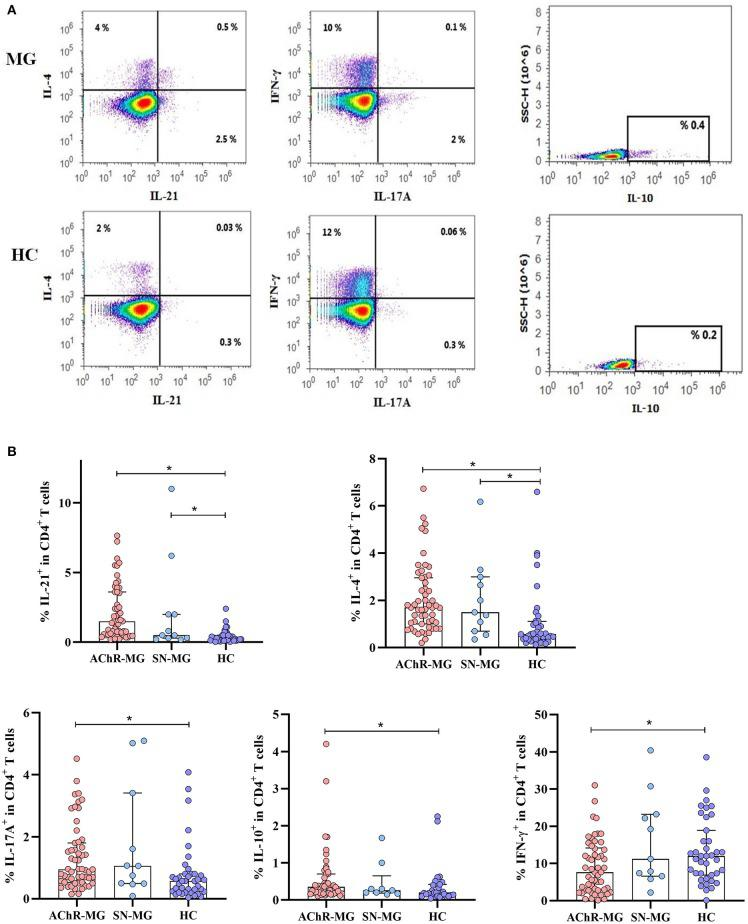 Cytokine production of CD4 +  T cells in myasthenia gravis (MG) subgroups.  (A)  Measurement of intracellular IL-21, IL-4, IL-17A, IL-10, and IFN-γ in CD4 +  T cells of a patient and a healthy control (HC) by flow cytometry after 4 h of stimulation with phorbol 12-myristate 13-acetate and ionomycin in cell culture.  (B)  The AChR-MG ( n  = 54) patients had higher IL-21, IL-4, IL-17A, and IL-10 ( p