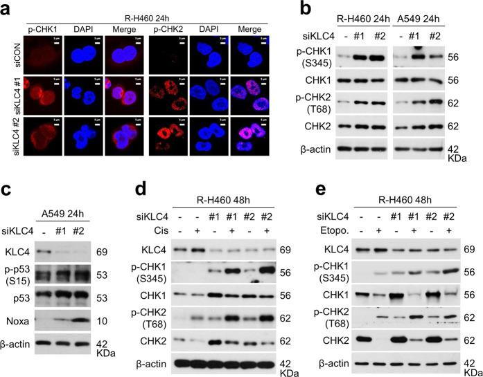 KLC4 knockdown induced activation of CHK1/CHK2 in R-H460 cells. a Twenty-four hours after transfection with siCON (negative control) or siKLC4, the cells were fixed with paraformaldehyde and immunostained using antibodies targeting p-CHK1 and p-CHK2. b Cell lysates [from cells treated as in (a)] were prepared and used for immunoblotting with antibodies against p-CHK1 (S345), CHK1, p-CHK2 (T68), and CHK2. c Protein levels of KLC4, p-p53 (S15), p53, and Noxa, as determined using western blotting after transfection with KLC4 siRNA. d , e Cells were treated with or without 10 μM cisplatin ( d ) or 10 μM etoposide ( e ) after transfection with KLC4 siRNA. The cell lysates were used for immunoblotting with antibodies against KLC4, p-CHK1 (S345), CHK1, p-CHK2 (T68), and CHK2.