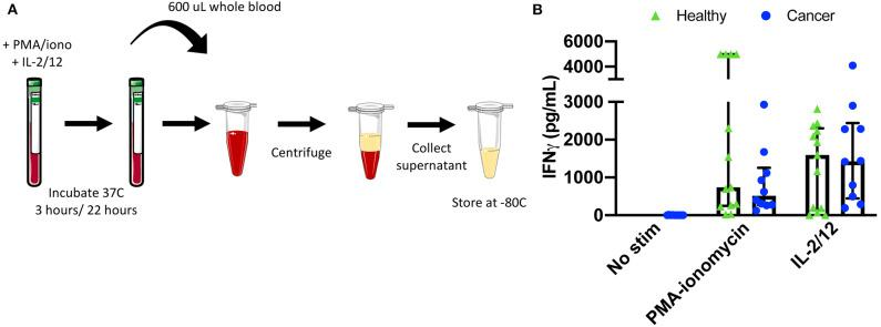 Plasma collection methodology for secretory cytokine quantification by ELISA. After incubation in the absence of stimulation or with either PMA-ionomycin or IL-2/12 stimulation for 24 h, 600 μL of whole blood was collected and spun down prior to being collected and stored at −80°C for subsequent use in a human IFNγ ELISA (A) . Extracellular IFNγ was quantified in response to stimuli in healthy donors ( n = 13) and cancer patients ( n = 10) (B) . Shown are the median values ± IQR.