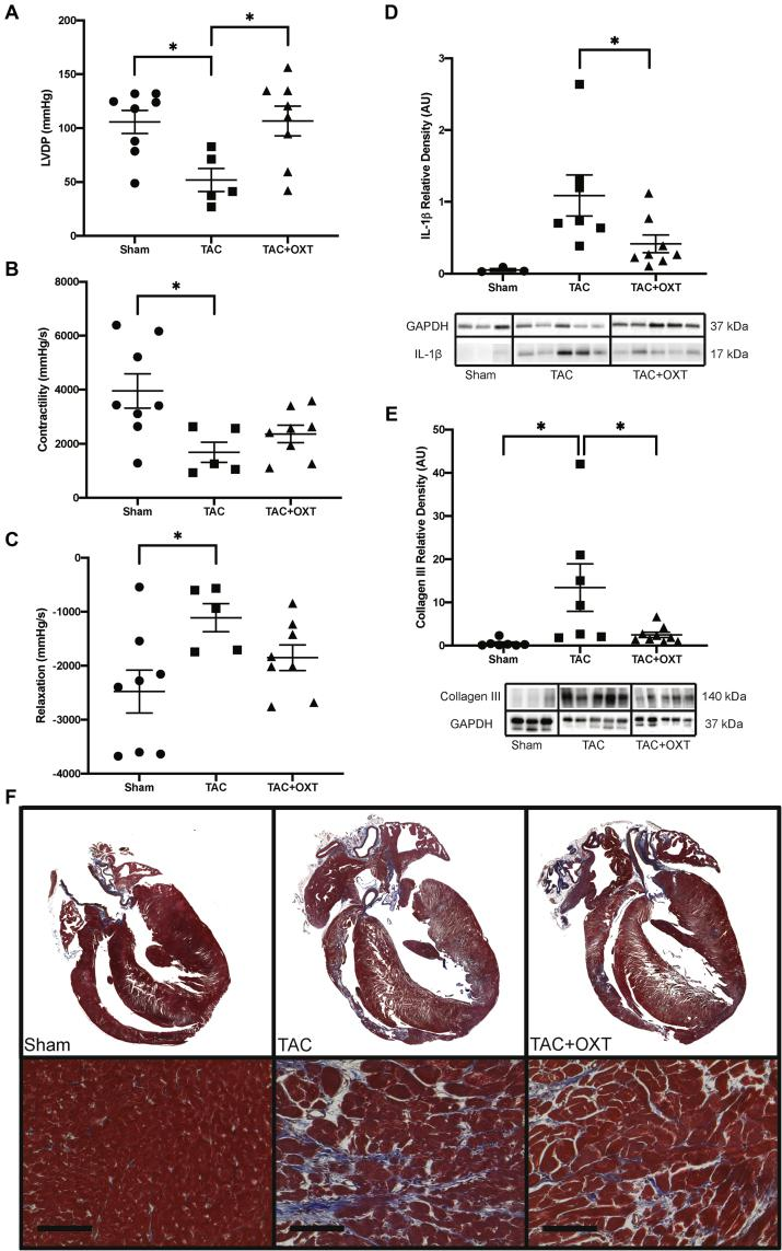Hearts From TAC Animals With PVN OXT Neuron Activation Had Improved LV Function and Less Collagen III and IL-1β Expression Compared with Untreated TAC Animals (A) Langendorff studies of excised hearts revealed that LVDP was significantly impaired in TAC animals (n = 5) compared with both Sham (n = 8) and PVN OXT treatment animals (n = 8). Contractility (B) and relaxation (C) measurements were calculated using the derivative of the LV pressure wave; both were significantly compromised in TAC animals (n = 5) compared with Sham animals (n = 8), whereas TAC + OXT animals (n = 8) did not significantly deviate from Sham. (D) Western-blot analysis revealed significant elevations in cardiac levels of IL-1β in TAC animals (n = 7) compared with PVN OXT treatment animals (n = 8) using a Student's t -test, as Sham levels were negligible; IL-1β quantitation is relative to GAPDH. (E) Western-blot assays also revealed significant elevations in cardiac levels of the fibrosis marker, collagen III, in TAC animals (n = 7) compared with both Sham (n = 7) and PVN OXT-treated animals (n = 9); collagen III quantitation is relative to GAPDH and to Sham values. (F) Trichrome-stained histological sections indicate increased fibrosis in all disease groups compared with Sham, as well as greater right-ventricular wall thinning in TAC-untreated animals compared with PVN OXT-treated animals. Data were analyzed using a 1-way analysis of variance with Tukey's post hoc test; ∗p