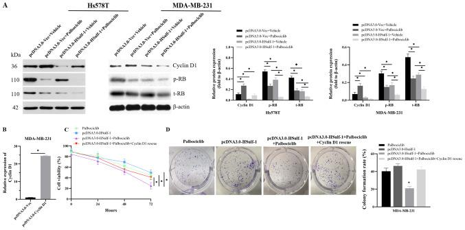 HSulf-1 exhibit synergy with palbociclib to exert antiproliferative effects on breast cancer cells by reducing palbociclib-induced cyclin D1 accumulation. (A) Western blotting was performed to measure the protein levels of cyclin D1, p-RB and total RB in Hs578T and MDA-MB-231 cells following transient transfection with the control vector or HSulf-1 overexpression plasmids and incubation with 500 nM palbociclib or DMSO. β-Actin was used as an internal control. (B) Reverse transcription-quantitative PCR was performed to measure mRNA level of cyclin D1 in MDA-MB-231 cells following transient transfection with the control vector or cyclin D1 overexpression plasmids. GAPDH was used as an internal control. (C) Cell Counting Kit-8 and (D) colony formation assays were performed to evaluate cell viability in MDA-MB-231 cells following incubation with 500 nM palbociclib for 14 days, overexpression of HSulf-1, overexpression of HSulf-1 followed by incubation with 500 nM palbociclib for 14 days or co-transfection of plasmids encoding HSulf-1 and cyclin D1 followed by exposure to palbociclib for 14 days. The results were derived from three independent experiments. Data are presented as the mean ± SD. * P