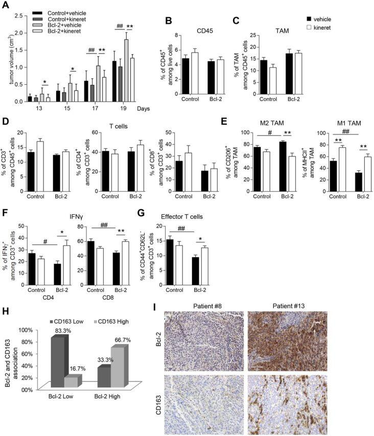 IL-1β plays a central role in the bcl-2-mediated effect on TAM and T cell functions. (A) Quantification of tumor volume in C57/Bl6 mice subcutaneously injected with control (Control) or bcl-2 overexpressing (Bcl-2) B16/F10 cells and treated with vehicle or with kineret (1 mg/kg, daily) from day 3 to day 12. Quantification by cytofluorimetric analysis of (B) CD45 + cells among live cells, (C) cd11b + F4/80 + (TAM) among CD45 + cells, (D) CD3 + among CD45 + cells (left panel), CD4 + (middle panel) and CD8 + (right panel) among CD3 + cells, (E) CD206 + (left panel), and MHCII + cells (right panel) among TAM in B16/F10 control or bcl-2 overexpressing tumors treated with vehicle or with kineret as reported in (A). Quantification by cytofluorimetric analysis of (F) IFNγ production and (G) CD44 + CD62L - among CD3 + infiltrating cells in B16/F10 control or bcl-2 overexpressing tumors treated with vehicle or with kineret as reported in (A). The results were reported as % of positive cells. (H) Quantification of bcl-2 and CD163 association in metastatic melanoma specimens, p=0.036. (I) Representative images of IHC analysis of bcl-2 and CD163 expression in patient #8 (bcl-2 low; CD163 low) and patient #13 (bcl-2 high; CD163 high). (A–G) The results represent the average ±SD of two independent experiments. P values were calculated between control and bcl-2 overexpressing tumors (#) and between tumors treated with vehicle or kineret (*), *p
