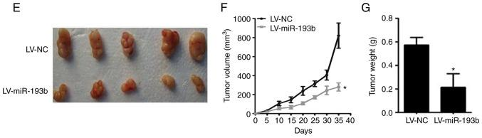 miR-193b suppresses proliferation and colony formation of osteosarcoma cells, and inhibits tumor growth in a xenograft model. (A) miR-193b expression was lower in F5M2 cells compared with F4 cells. (B) Overexpression of miR-193b reduced colony formation of F5M2 cells, whereas downregulation of miR-193b enhanced colony formation of F4 cells. (C) Transient and stable transfection efficiencies of miR-193b mimic or inhibitor were quantified. (D) Transient or stable transfection of miR-193b mimic in F5M2 cells inhibited proliferation, whereas transfection of miR-193b inhibitor in F4 cells enhanced cell proliferation. (E) Representative images illustrating tumor formation in a nude mouse xenograft model on day 35. (F) Tumor volume and (G) tumor weight were lower in mice injected with miR-193b-upregulated F5M2 cells. Data are presented as the mean ± SD of at least three independent experiments. *P