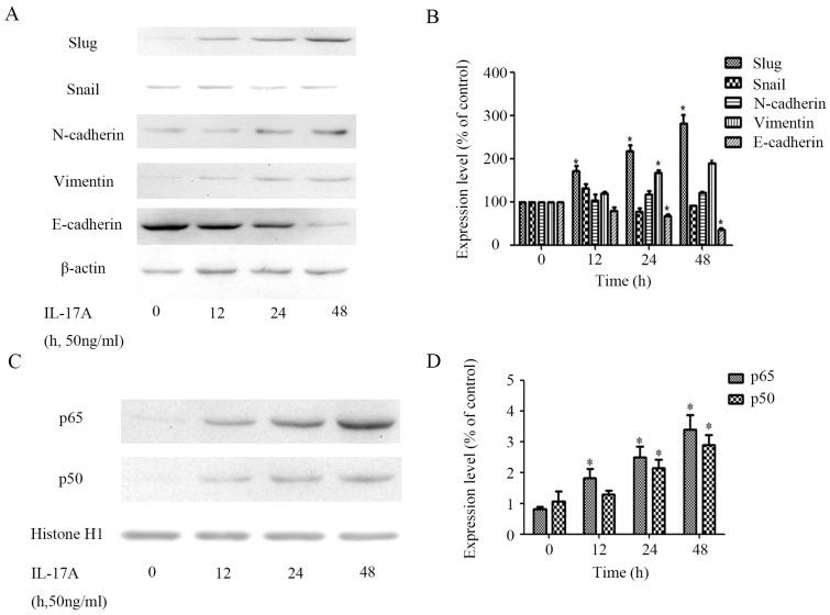 IL-17A induces EMT of GBC cells. (A) Protein levels of Snail, E-cadherin, N-cadherin, Vimentin and Slug in GBC cells treated with IL-17A (50 ng/ml) for 24 h or not were detected with western blot. (B) The expression levels of E-cadherin, Vimentin, N-cadherin, Snail and Slug were quantified as percentage of control. (C) The effect of IL-17A on protein expressions of NF-κB/p50 and p65. (D) Quantification of the expressions of NF-κB/p50 and p65. All data are presented as the mean±standard deviation. * p