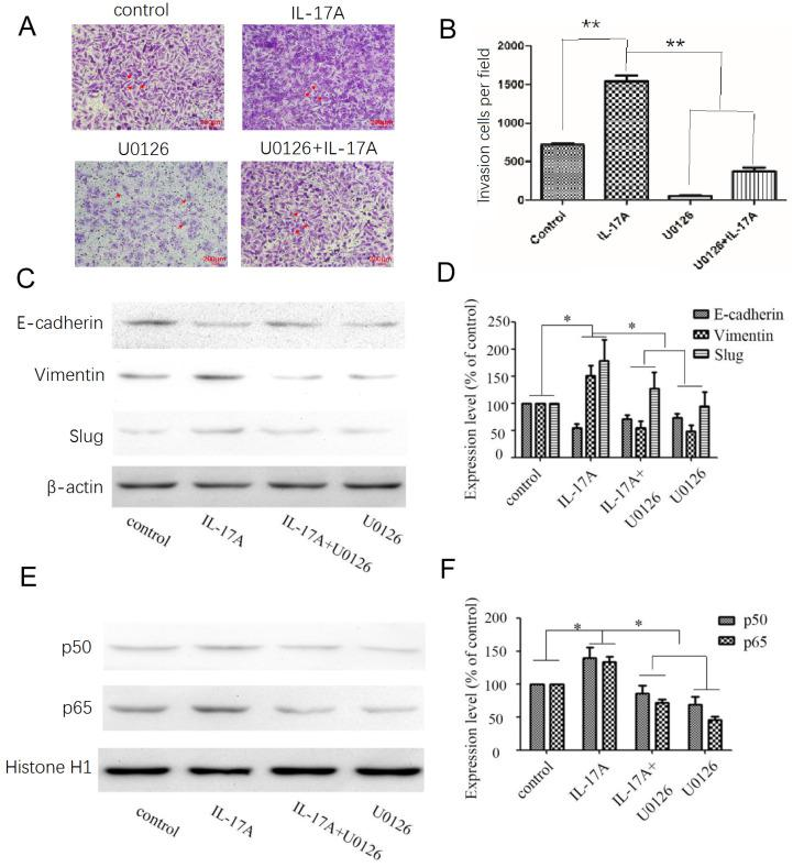 Effects of the ERK signal pathway inhibitor and IL-17A on cell invasion and EMT in GBC cells. (A, B) The pro-invasion effect of IL-17A in GBC cells could been partially reversed by U0126. (C, D) After treated with an ERK inhibitor (U0126; 10 μM) for 30 min, GBC cells were cultured with IL-17A or not. Pretreated with U0126 (10 μM), the expression levels of Vimentin were significantly decreased, the expression levels of E-cadherin were significantly increased. (E, F) Pretreated with U0126 could block the nuclear translocation of NF-κB/p50 and p65 in GBC cells. All data are presented as the mean±standard deviation. * p