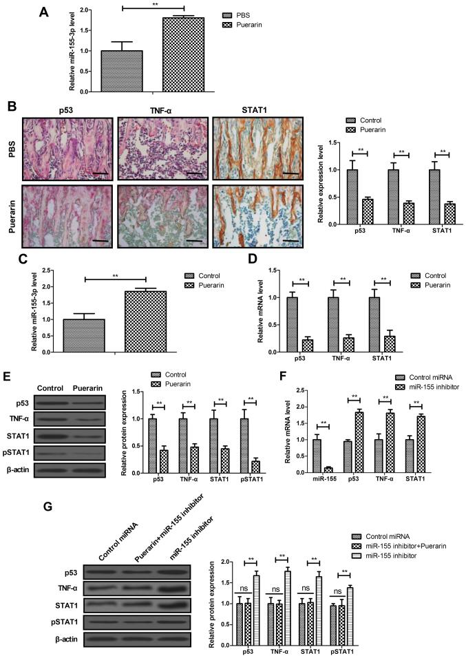 Puerarin regulated miR-155-3p-mediated p53/TNF-α/STAT1 signaling in BMSCs. (A) Expression of miR-155-3p in bone tissue in rats with bone graft defects. (B) IHC assay analyzed the expression of p53, TNF-α and STAT1 in bone tissue in the puerarin and PBS groups. (C) Expression of miR-155-3p in BMSCs. (D) Gene and (E) protein expression of p53, TNF-α and STAT1 in BMSCs. (F) Effects of miR-155 inhibitor on miR-155, p53, TNF-α and STAT1 mRNA expression in BMSCs. (G) Effect of miR-155 inhibitor on p53, TNF-α and STAT1 protein expression in BMSCs. Scale bars, 50 μ m. Data are expressed as the mean ± standard deviation. Each experiment was repeated at least three times. Student's t-test was used to evaluate the statistical significance of differences between two groups and one-way ANOVA followed by Tukey's test were performed for multiple groups. ** P
