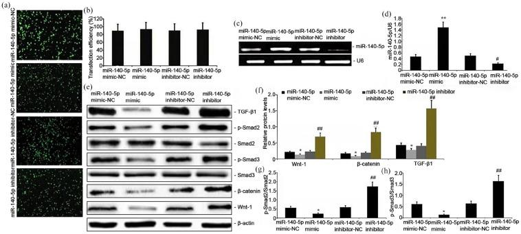 Transfection efficiency and stability of the mimics or inhibitor and effects of miR-140-5p in A549 cells on the Smad/TGF-β1 and Wnt1/β-catenin signaling pathways. miR-140-5p mimics, miR-140-5p mimic-NC, miR-140-5p inhibitor, and miR-140-5p inhibitor-NC were individually mixed with <t>Lipofectamine</t> 2000 (Invitrogen, Carlsbad, CA, USA) and placed into the cell culture to transfect A549 cells. After 48 h of transfection, (a) fluorescence expression of transfected cells after miR-140-5p mimics, miR-140-5p mimic-NC, miR-140-5p inhibitor, and miR-140-5p inhibitor-NC transfection (×50); (b) transfection efficiency of miR-140-5p mimics, miR-140-5p mimic-NC, miR-140-5p inhibitor, and miR-140-5p inhibitor-NC; (c) and (d) relative miR-140-5p expression levels were determined by qRT-PCR; (e)–(h) Wnt1, β-catenin, p-Smad3, and TGF-β1 expression levels were measured by Western blot analysis. Data from three independent experiments are presented as mean ± SD. * P