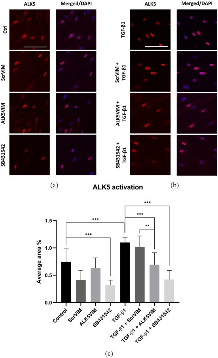 Immunofluorescence and quantification of activated ALK5 in HS-derived fibroblasts. Fibroblasts were pre-treated with ViMs (2 μM) or SB431542 (10 μM) for 24 h. Next, fibroblasts were treated with hTGF-β1 (5 ng/mL) for 1 h. (a) ALK5 IF staining (red) for the following conditions: TGF-β1, ScrViM+TGF-β1, ALK5ViM+TGF-β1 and SB431542+TGF-β1. Nuclear staining was performed with DAPI, displayed in corresponding merged images. Scale bar: 100 µm. (b) Quantification of ALK5 activation presented as average area fraction. Fluorescent signal was calculated as area fraction for every donor in eight different conditions (Control [untreated], ScrViM, ALK5ViM, SB431542, TGF-β1, ScrViM+TGF-β1, ALK5ViM+TGF-β1 and SB431542+TGF-β1) and was calculated with ImageJ. n = 3; * P