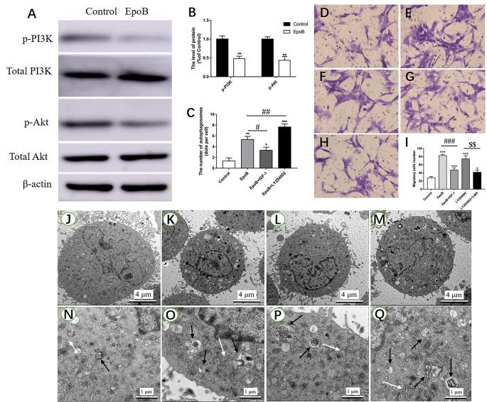 EpoB significantly enhances migration by PI3K/Akt signaling-mediated autophagy in SCs. Representative western blotting (A) and data analysis of p-PI3K and p-Akt in each group (B) . (C) Quantification of the total number of autophagosomes in each group. Transwell analysis of migratory cells in the control (D) , EpoB (E) , EpoB+IGF-1 (F) , LY294002 (G) , and LY294002+3-MA (H) groups at 24 h after treatment. (I) Quantification of the total number of migratory cells in each group. TEM analysis showing the formation of autophagosomes in SCs from the control (J,N) , EpoB (K,O) , EpoB+IGF-1 (L,P) , and EpoB+ LY294002 (M,Q) groups at 24 h after treatment. White arrowheads indicate normal endoplasmic reticula; black arrowheads indicate double-membraned autophagosomes. Scale bars: (J–M) 4 μm; (N–Q) 1 μm. * P