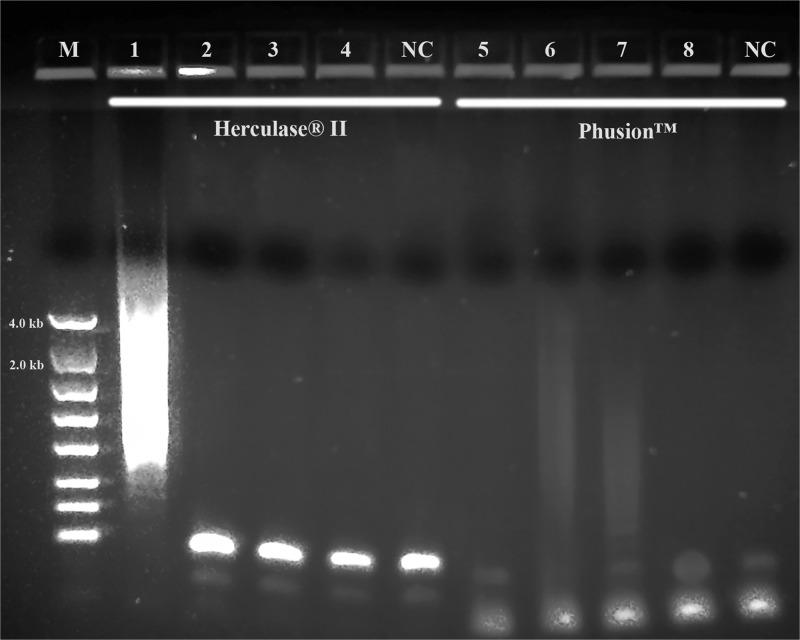<t>PCR</t> performance of Herculase® II Fusion <t>DNA</t> polymerase and <t>Phusion™</t> High-Fidelity DNA Polymerase. M: DNA markers; 1 and 5: 104K37; 2 and 6: 104K38; 3 and 7: 104K39; 4 and 8: 104K40. 1, 2, 3 and 4: Herculase® II Fusion DNA polymerase; 5, 6, 7 and 8: Phusion™ High Fidelity PCR System; NC: negative control, respectively.