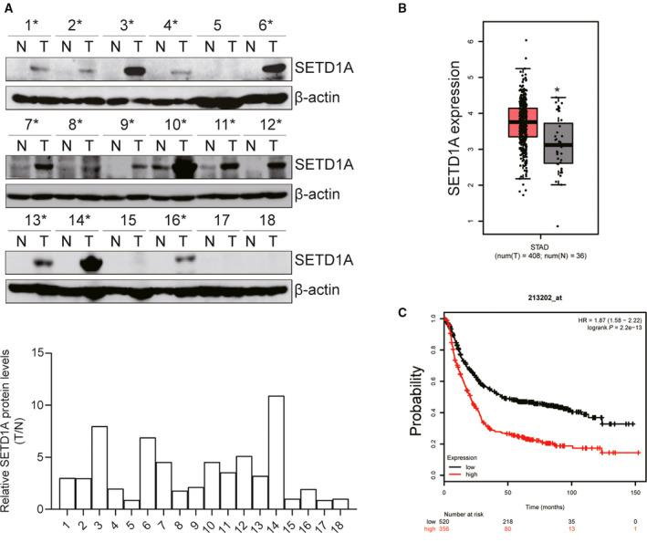 SETD1A was overexpressed in human GC specimens and predicated poor outcome. (A) Analysis of the protein of SETD1A in 18 pairs of GC specimens and surrounding nontumor tissues. (B) Analysis of the expression of SETD1A in normal ( n = 36) and GC ( n = 408) specimens from TCGA dataset obtained by GEPIA. (C) Analysis of the overall survival rate in SETD1A‐high and SETD1A‐low expression GC patients from GEO dataset. * P