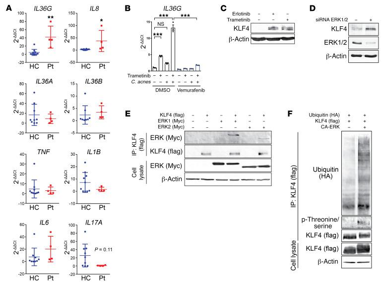 Blockade of the EGFR/MEK/ERK pathway increases keratinocyte expression of KLF4. ( A ) Quantitative PCR was performed to evaluate gene expression in RNA isolated from biopsies of 4 patients with acneiform eruption and 10 healthy control (HC) skin biopsies. Data represent mean ± SD. ( B ) PHKs were pre-exposed to the BRAF inhibitor vemurafenib (1 μg/mL) for 30 minutes and exposed to the MEK inhibitor trametinib (2 μg/mL) and C . acnes (MOI of 10) for 6 hours. Data represent mean ± SEM ( n = 3). Data were analyzed with 2-tailed unpaired t test ( A ) or 1-way ANOVA followed by Tukey's multiple-comparisons test ( B ). * P