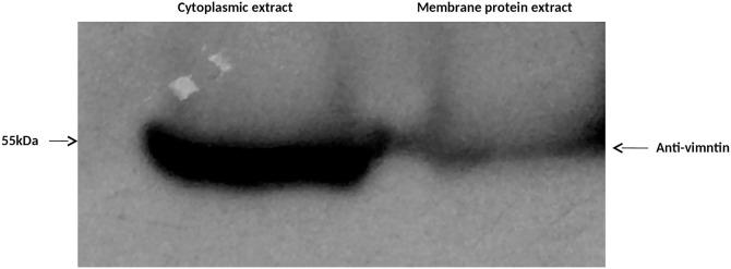 Western blot analysis to demonstrate the presence of vimentin in cytoplasmic and membrane extract. The Neuro-2a cell membrane and cytoplasmic proteins were resolved on SDS-PAGE, transferred to PVDF membrane and probed with anti-vimentin antibody. Note the presence of vimentin in cytoplasmic and membrane fractions.