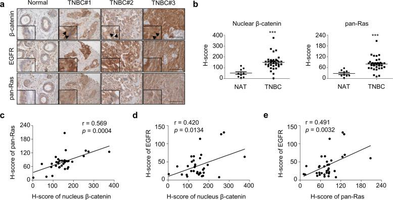 The increased expression and correlation of β-catenin, pan-RAS, and EGFR in the tumor tissues of TNBC patients. a IHC analyses of the TMA including TNBC tissues ( n = 34) and NATs ( n = 10) were performed using β-catenin, pan-RAS, or EGFR antibodies. Scale bar represents 200 μm. b Quantified H-score of nuclear β-catenin ( p