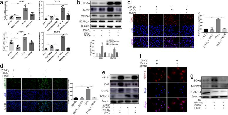 RCAN1.4 the ECM synthesis and remodeling by regulating the calcineurin/NFAT signaling pathway. a Relative SOX9 and MMP13 gene expression in rat NP cells treated with or without FK506 (a calcineurin inhibitor) and stimulated with hypoxia or DMOG treatment. b Western blot analysis of rat NP cells treated with or without FK506 and stimulated with hypoxia or DMOG treatment. The quantified results are shown below. c Immunofluorescence analysis of SOX9 and d type II collagen in rat NP cells treated with or without FK506 and stimulated with hypoxia or DMOG treatment for 48 h. Results of the quantification of SOX9 and type II collagen expression are shown on the right. e Western blot analysis of rat NP cells treated with vector or RCAN1.4 plasmid and stimulated with hypoxia or DMOG treatment. f Immunofluorescence demonstrated that RCAN1.4 overexpression suppressed the nuclear translocation of NFATc1 in rat NP cells under hypoxia. g Relative expression of SOX9 and MMP13 in rat NP cells treated with or without FK506 and stimulated with negative control siRNA or 100 nM RCAN1.4 siRNA. All experiments were performed at least three times. Scale bar: 100 μm. * P