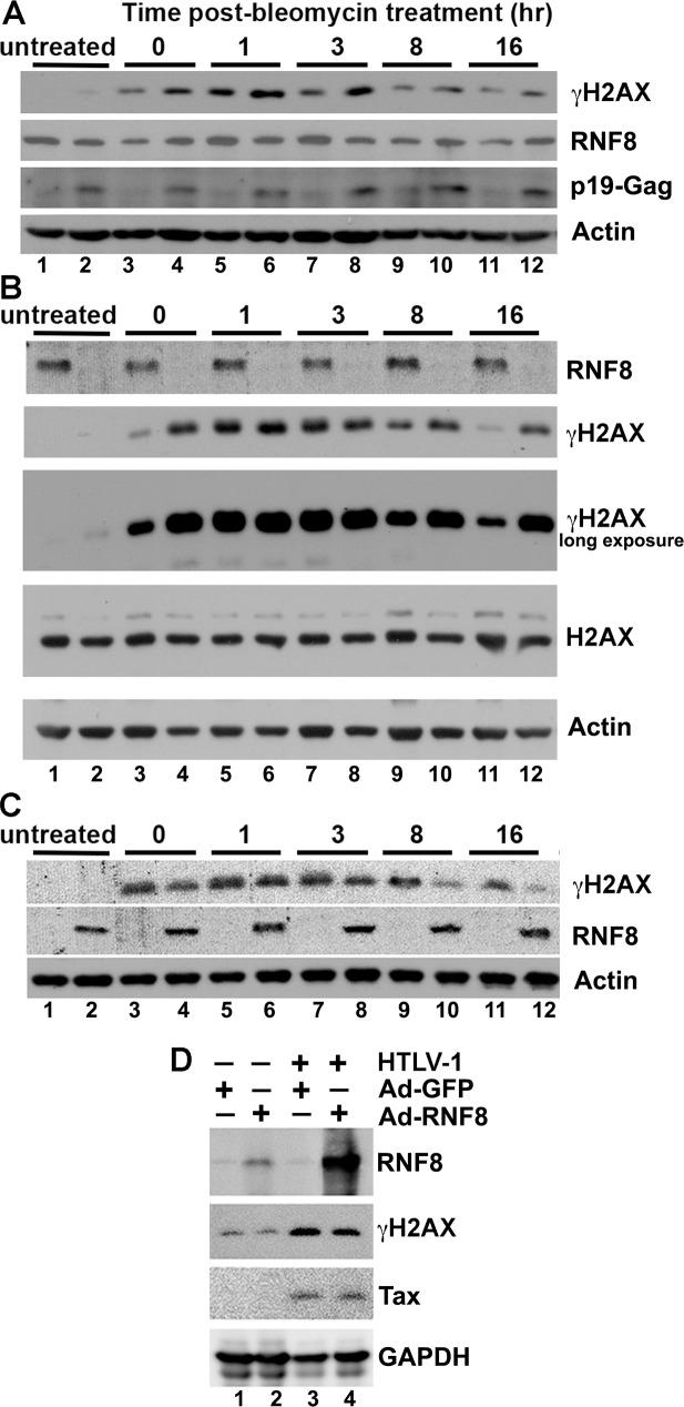 The DDR impairment in HTLV-1-infected HeLa cells cannot be rescued by RNF8 over-expression. (A) HTLV-1-infected HeLa cells are DDR impaired . HeLa-G: ΔN-IκBα and its progeny, HeLa-G: ΔN-IκBα:HTLV-1, that has been stably infected by HTLV-1 were treated with 12 μM bleomycin for 1 hr to induce DNA damage, washed, grown in fresh bleomycin-free media and harvested at the indicated times post-treatment (0, 1, 3, 8 and 16 hrs) and monitored by IB for γH2AX, RNF8, p19 matrix protein, and β-actin control. (B) RNF8 is crucial for the repair of DNA double-strand breaks. HeLa-G and HeLa-G ΔRNF8 were similarly treated with bleomycin as in (A) and monitored by IB for RNF8, γH2AX, H2AX and β-actin control. (C) RNF8 over-expression rescued the DDR defect in RNF8-null cells. HeLa-G ΔRNF8 cells (2X10 5 ) grown in 6-well plates were infected by Ad-GFP (odd-number lanes) or Ad-RNF8 (even-number lanes) at an MOI of 5 for 16 hrs. The infected cells were treated with bleomycin and monitored for rescue at indicated times by γH2AX, RNF8, and β-actin IB. (D) RNF8 over-expression could not rescue the DDR defect of HTLV-1-infected cells. HeLa-G: ΔN-IκBα (lanes 1 2) and HeLa-G: ΔN-IκBα:HTLV-1 (lanes 3 4) were infected by Ad-GFP or Ad-RNF8 at MOI of 5, respectively. Twenty-four hours post-infection, cells were treated with bleomycin as in (A), and grown in bleomycin-free media for another 16 hrs. Thereupon, cells were harvested and immunoblotted for the RNF8, γH2AX, Tax and GAPDH. See Supplemental Information for quantitation of representative immunoblots.