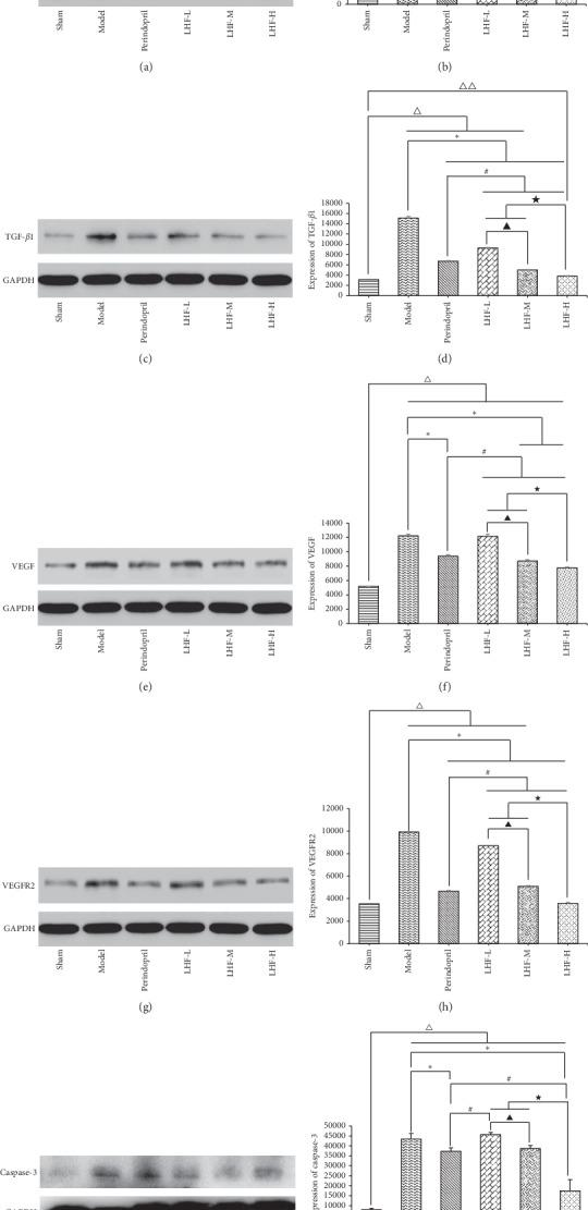 Protein expression of myocardial tissue in pressure-overloaded heart failure rats. (a) Western blot analysis of eNOS protein expression in myocardial tissue. (b) Quantification of eNOS protein expression in myocardial tissue by densitometry. (c) Western blot analysis of TGF- β 1 protein expression in myocardial tissue. (d) Quantification of TGF- β 1 protein expression in myocardial tissue by densitometry. (e) Western blot analysis of VEGF protein expression in myocardial tissue. (f) Quantification of VEGF protein expression in myocardial tissue by densitometry. (g) Western blot analysis of VEGFR2 protein expression in myocardial tissue. (h) Quantification of VEGFR2 protein expression in myocardial tissue by densitometry. (i) Western blot analysis of <t>caspase-3</t> protein expression in myocardial tissue. (j) Quantification of caspase-3 protein expression in myocardial tissue by densitometry. Data are expressed as mean ± standard deviation (SD). Δ P