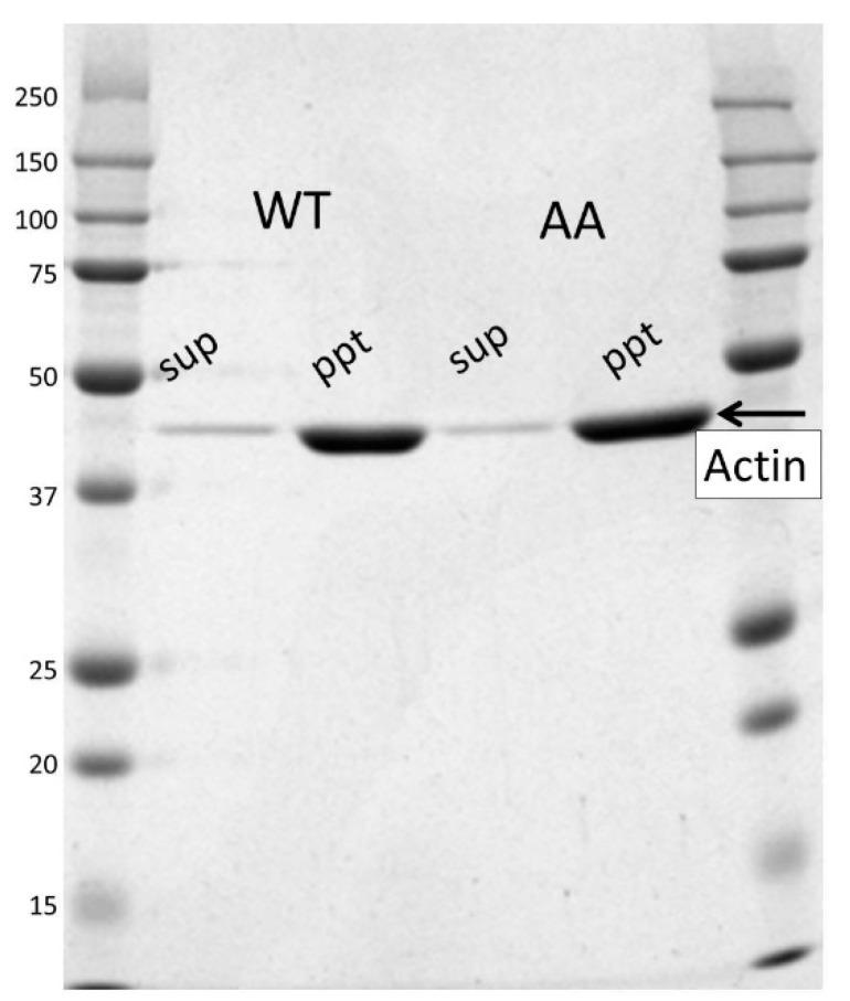 Critical concentration measurement of the actin filament. Recombinant actin (0.5–3 µM as final concentrations) was polymerized in F-buffer (2 mM Tris-HCl, 100 mM KCl, 2 mM MgCl 2 , 0.2 mM ATP (adenosine triphosphate), 0.2 mM <t>DTT</t> <t>(dithiothreitol),</t> pH 8.0) by incubating for 60 min at room temperature and separating by ultracentrifugation into the pellet (ppt) and supernatant (sup). An example of an SDS-PAGE gel for wild-type (WT) and the G42A/G46A mutant (AA) is shown. The critical concentration was measured by densitometry of actin in the supernatant. Four independent experiments were performed and the ratio of the critical concentration of the mutant against the WT was 0.82 ± 0.03 (standard error). The left and right lanes are molecular mass markers with molecular weights provided in kilo-Daltons on the left-hand side.