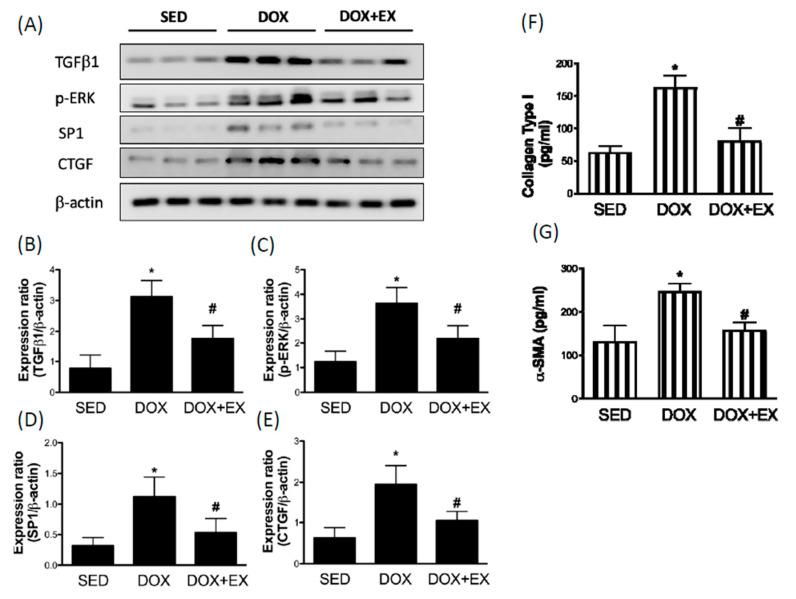 The effect of treadmill exercise on the DOX-driven upregulation of fibrosis factors Representatives of Western blot ( A ) and the densitometric analysis of TGF-β1 ( B ), phosphorylated ERK ( C ), Sp1 ( D ), and CTGF ( E ). The collagen type I ( F ) and α -SMA ( G ) were tested by ELISA. * p