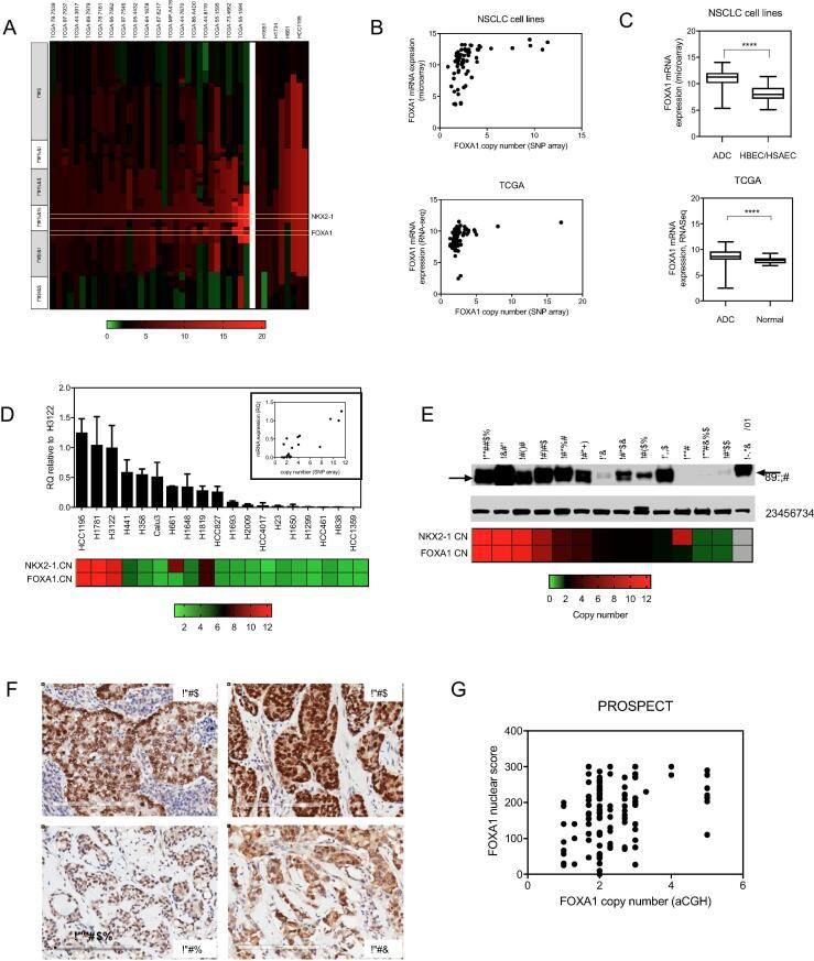 FOXA1 is amplified and overexpressed in NSCLCs. (A) FOXA1 is frequently co-amplified with NKX2-1 in NSCLC tumors. Segmented copy number profiles of the genomic region that includes NKX2-1 and FOXA1 , from SNP array datasets on primary lung adenocarcinomas from TCGA (left), and on NSCLC cell lines (right). Samples with ≥4 copies of NKX2-1 are shown in rank order of NKX2-1 amplification from left to right, with corresponding chromosome band regions indicated on the left. (B) Scatter plots comparing FOXA1 copy number with FOXA1 mRNA expression level in cell lines (top), and tumors (bottom). (C) Average FOXA1 expression levels in cell lines compared to HBEC and HSAEC cell lines (top), and in primary tumors compared to normal tissues (bottom). (D) FOXA1 mRNA levels measured by Q-RTPCR in a panel of NSCLC cell lines. RQ = relative quantification, normalized to GAPDH and calculated from three technical replicates. Error bars indicate the upper and lower limits of the RQ value. Copy number for NKX2-1 and FOXA1 are indicated on the bottom. Inset: Scatter plot comparing copy number levels in NSCLC cell lines with mRNA levels. (E) FOXA1 protein expression levels in a panel of cell lines, with copy number indicated on the bottom. (F) Representative images of lung adenocarcinomas from the PROSPECT tumor array harboring 14q-ampflication and high FOXA1 expression (top), or no amplification and low expression (bottom). (G) Scatter plot comparing FOXA1 copy number (aCGH) with quantified IHC staining for FOXA1 on PROSPECT tumor array specimens.