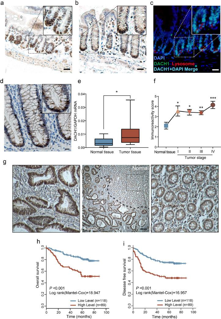 DACH1 marks crypt base cells in intestines and predicts poor outcomes in colorectal cancer patients. DACH1 expression in the mouse small intestine (a) and large intestine (b); scale bars=20 μm. In the mouse small intestine, DACH1 is expressed in crypt base cells interspersed between Paneth cells. Lysozymes (a marker of Paneth cells) were stained red, and DACH1 was stained green, which merged into cyan with DAPI (blue); scale bar=20 μm (c). DACH1 is also expressed in the human large intestine; scale bar=20 μm (d). DACH1 mRNA is overexpressed in colorectal cancer tissues compared to adjacent normal tissues, as detected by qRT-PCR (e), and IHC revealed that the expression of DACH1 increased in all stages of CRC when compared with the normal tissue (f) (* P