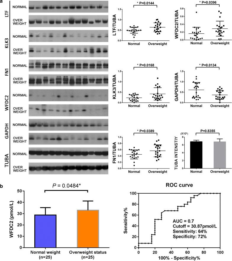 Representative western blot analyses of four altered HFF proteins and validation of the expression of upregulated protein WAP four-disulfide core domain protein 2 (WFDC2) by ELISA.  a  The expressions of WAP four-disulfide core domain protein 2 (WFDC2), lactotransferrin (LTF), Prostate-specific antigen (KLK3), Fibronectin (FN1), and glyceraldehyde 3-phosphate dehydrogenase (GAPDH) were confirmed by western blot. Asterisk denoted a statistically significant difference between the two groups;  a  WFDC2 concentration in the follicular fluid samples of 25 normal weight women and 25 overweight status women. ROC curve of WFDC2 distinguished the normal weight and overweight status women