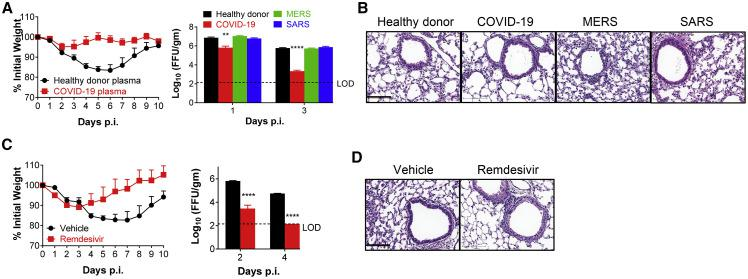 Convalescent Plasma from COVID-19 Patients and Remdesivir Protect Mice from SARS-CoV-2 Infection (A and B) For plasma adoptive transfer, Ad5-hACE2-transduced mice were injected with 150 μL of plasma i.v. from a healthy donor or COVID-19, MERS, or SARS convalescent patients, at −1 d.p.i. Weight and virus titers in lung tissues were monitored (A) and expressed as FFU/g tissue (n = 4 mice per group per time point). Sections of paraffin embedded lungs from plasma adoptive transferred and infected mice were stained with HE at day 4 p.i. (B). Scale bar, 100 μm. (C and D) For remdesivir treatment, Ad5-hACE2-transduced mice were treated with remdesivir (25 mg/kg, bid s.c.) or vehicle at −1 d.p.i. Weight loss of infected mice and virus titers in the lungs were monitored (C), and hematoxylin/eosin staining of sections of paraffin-embedded lungs is shown at 4 d.p.i. (D) (n = 4 mice per group per time point). Data are representative of two independent experiments. Scale bar, 100 μm. ∗ p values ≤ 0.05; ∗∗ p values ≤ 0.005; ∗∗∗ p values ≤ 0.0005; ∗∗∗∗ p values of ≤ 0.0001.